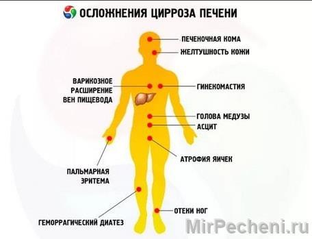 мочекаменные болезнь клиника