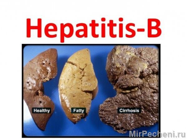 Состояние печени при гепатите Б