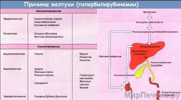 Причины желтухи (Гипербилирубинемии)
