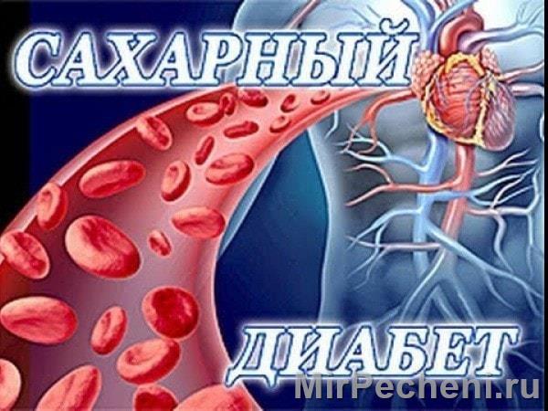 Сахарный диабет - типы, симптомы, лечение, признаки у женщин и мужчин