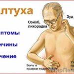 Желтуха у взрослых: симптомы, лечение, причины