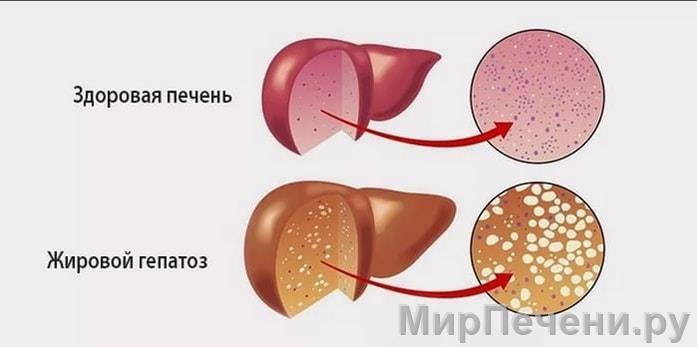 Гепатоз печени: как лечить, симптомы и признаки, диета, диффузные изменения, перерождение?
