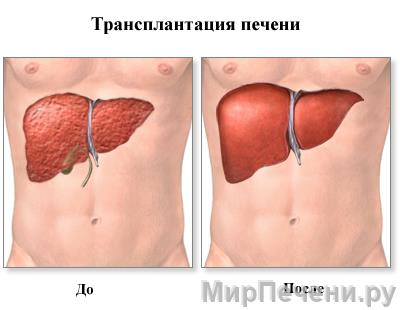 Трансплантация печени (до/после)