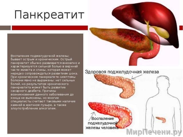 Что такое панкреатит поджелудочной железы?
