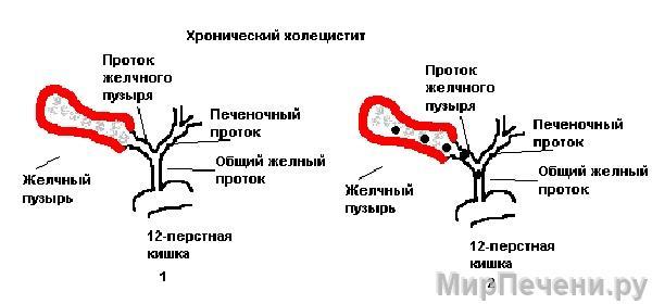 Хронический холецистит на рисунке