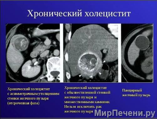 Хронический холецистит на снимке