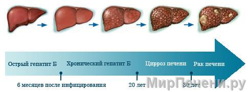 Стадии развития рака печени