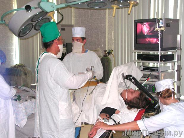 Ход операции лапароскопическая холецистэктомия