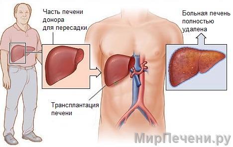 Как происходит пересадка печени?