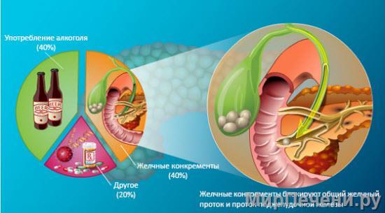 Почему возникает панкреатит?