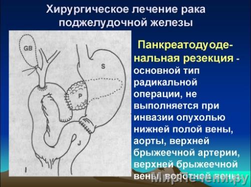 Хирургическое лечение рака поджелудочной железы