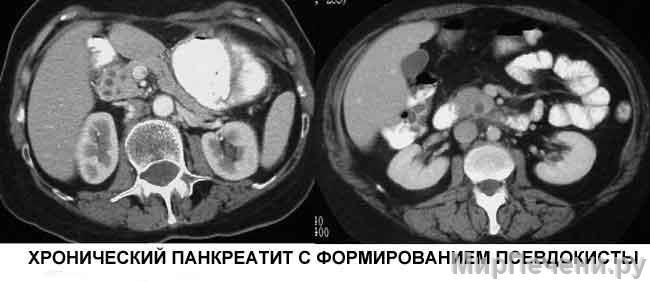Хронический панкреатит с формированием псевдокисты