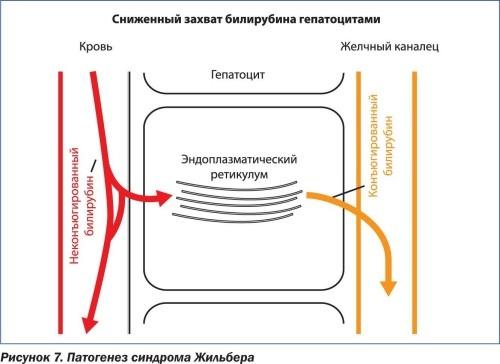 Гетерозиготный генотип к болезне жильбера