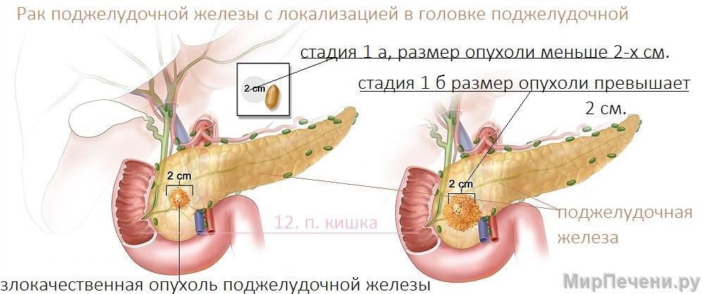 Рак поджелудочной железы с локализацией в головке поджелудочной