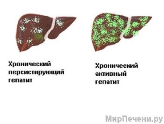 Типы хронического гепатита
