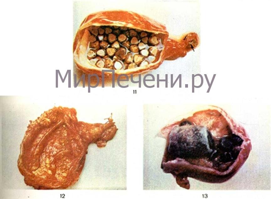 Варианты калькулёзного холецистита