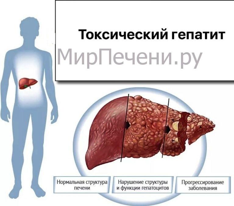 Токсический гепатит
