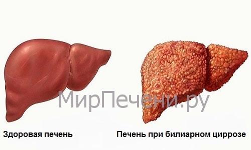 Билиарный цирроз и здоровая печень