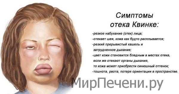 Ливодекса: возможный побочный эффект - отек Квинке
