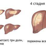Какая продолжительность жизни у людей с третьей стадии цирроза печени?