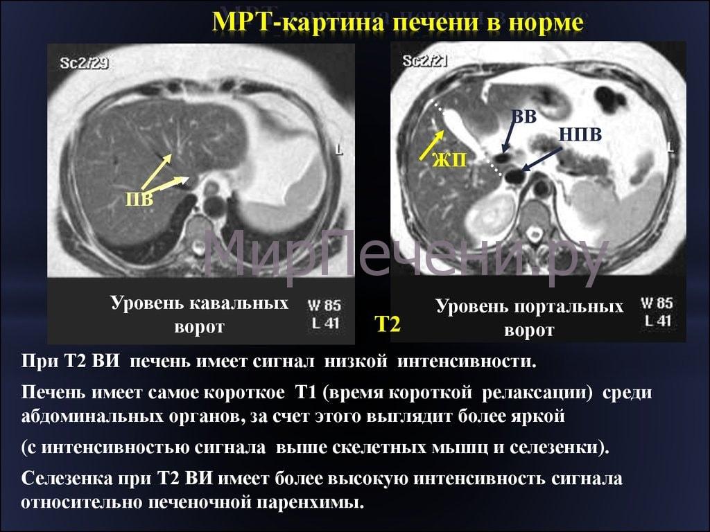 Сколько стоит МРТ печени?
