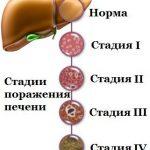 Какие существуют стадии развития цирроза печени?