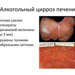 Сколько живут на последней стадии алкогольного цирроза печени?