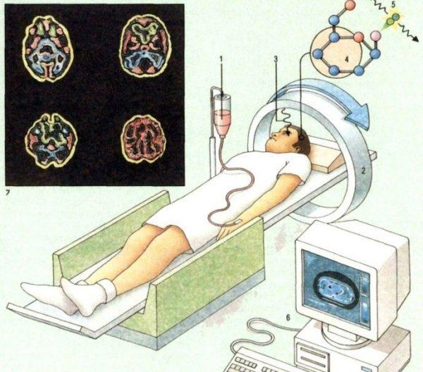 Как лежать во время позитронной эмиссионной томографии мозга