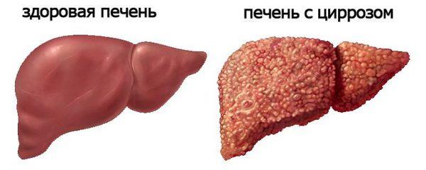 вид печени при циррозе