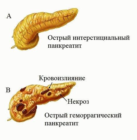Проявление острого панкреатита