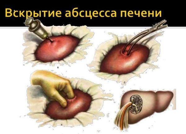 Чрескожное вскрытие абсцесса печени