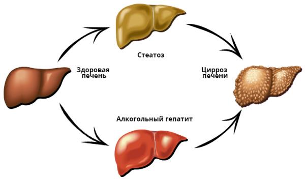 Как развиваются алкогольные болезни печени