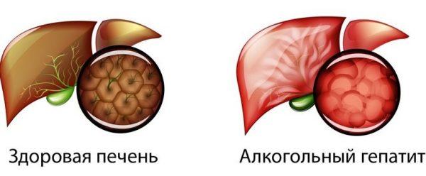 Сравнение здоровой печени и пораженной алкогольным гепатитом