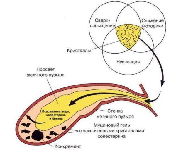 Схема образования холедохолитиаза