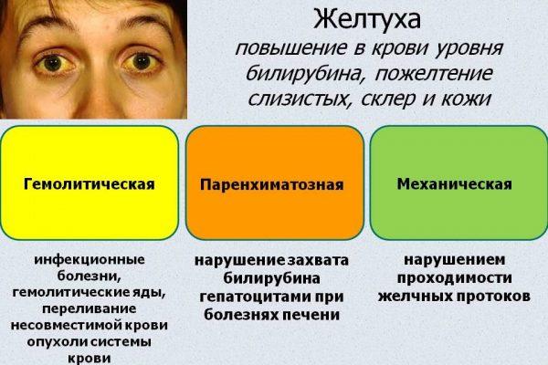 Признаки желтухи при холедохолитиазе