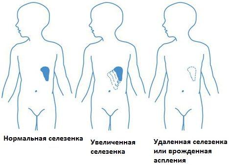 Врожденные заболевания селезенки