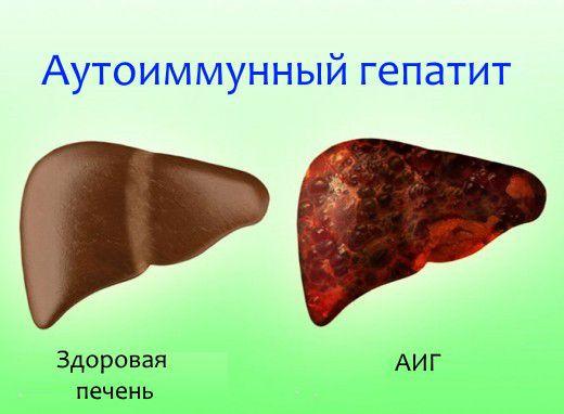 Печень при аутоиммунном гепатите
