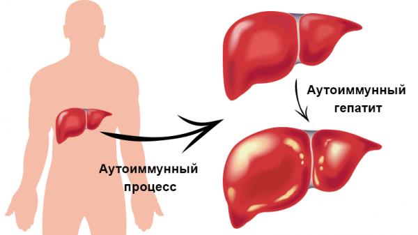 Аутоиммунный гепатит печени