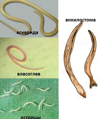 Основные виды гельминтов