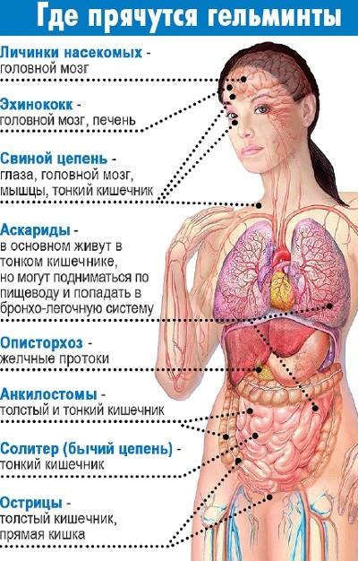 Локализация гельминтов в организме