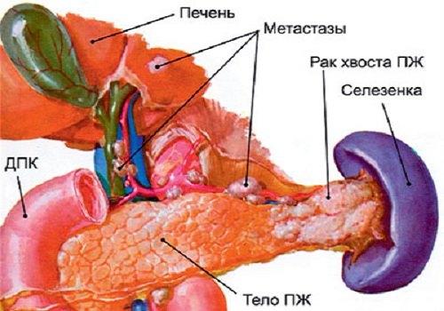 Что такое метастазы от поджелудочной железы