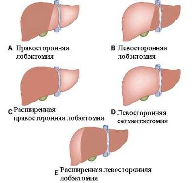Методы хирургического лечения опухолей в печени