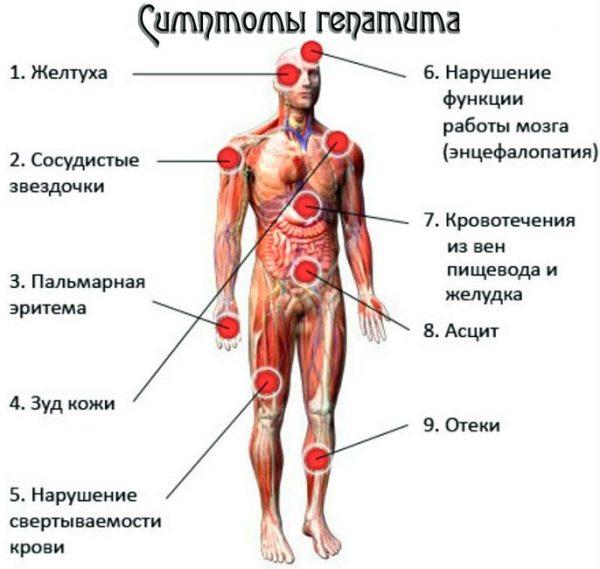 Симптомы острого гепатита