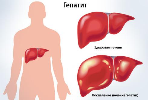 Острый гепатит печени