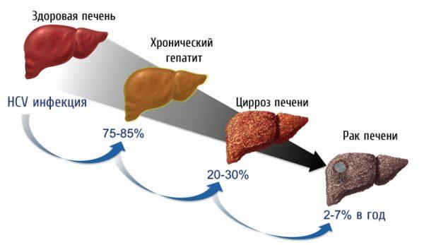 Перерождение гепатита в опухоль