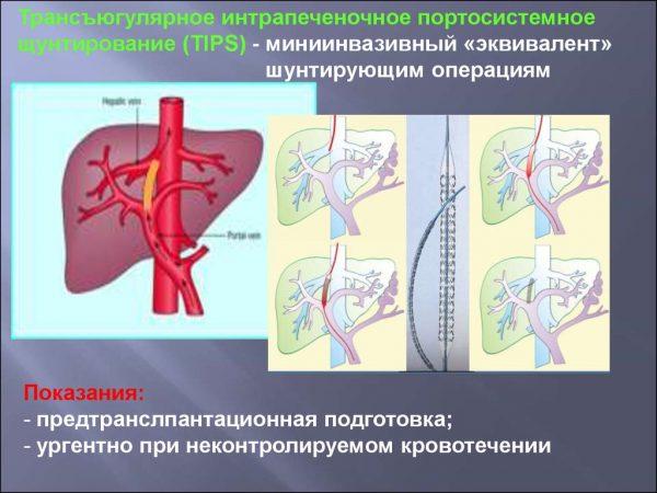 Шунтирование при портальной гипертензии