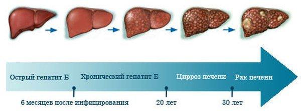 Осложнения токсического гепатита